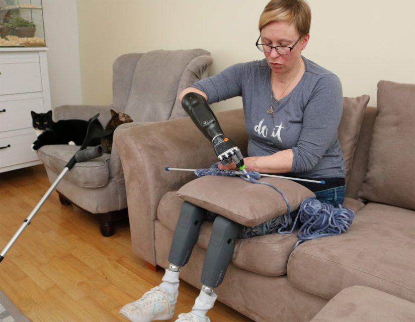 Arjan käsiproteesissa on kahdeksan erilaista toimintoa, joista yksi soveltuu myös käsitöiden tekemiseen. – Toiveena on saada samanlainen proteesi myös vasempaan käteen. Apuvälinekeskuksen periaate on hyvin nurinkurinen, sillä heidän mukaansa kahden menetetyn käden tilalle voi saada vain yhden.