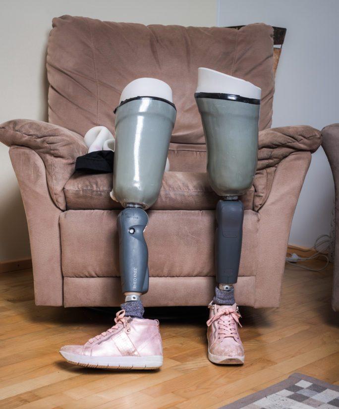 Toisinaan ketutuskäyrän saa eksponentiaaliseen nousuun proteesit.