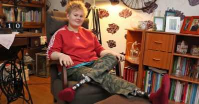 """Kiia sai ensimmäiset proteesinsa jo taaperoikäisenä – """"Olen oman elämäni supersankari"""""""