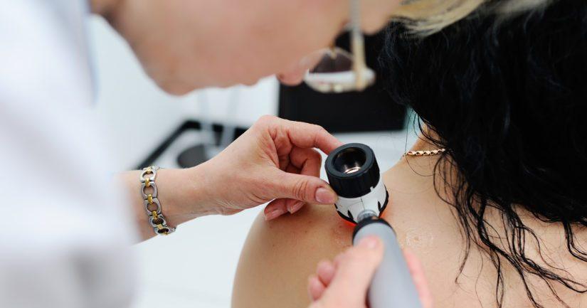 Jos melanooma havaitaan riittävän ajoissa, se voidaan hoitaa leikkauksella.