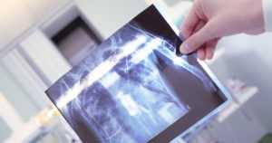 Tuberkuloosi on edelleen yksi maailman yleisimmistä infektiotaudeista – 1,5 miljoonaa ihmistä menehtyy vuosittain
